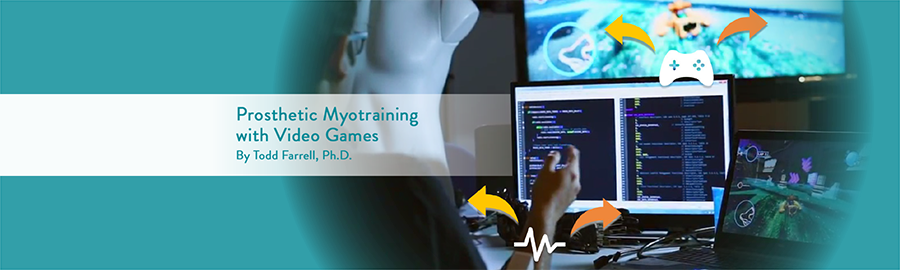 Prosthetic Myotraining with Video Games